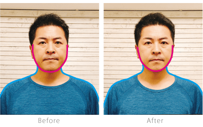 before after男性